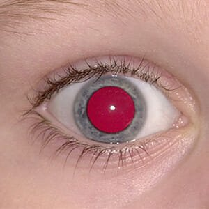 Childhood Eye Cancer Trust - who to see