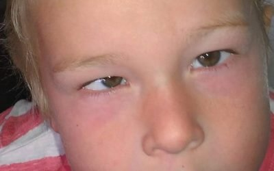One third of parents say a squint is NOT a symptom of childhood eye cancer